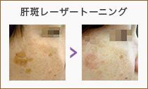 肝斑レーザートーニング